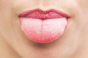 Ce spune culoarea limbii despre starea ta de sanatate
